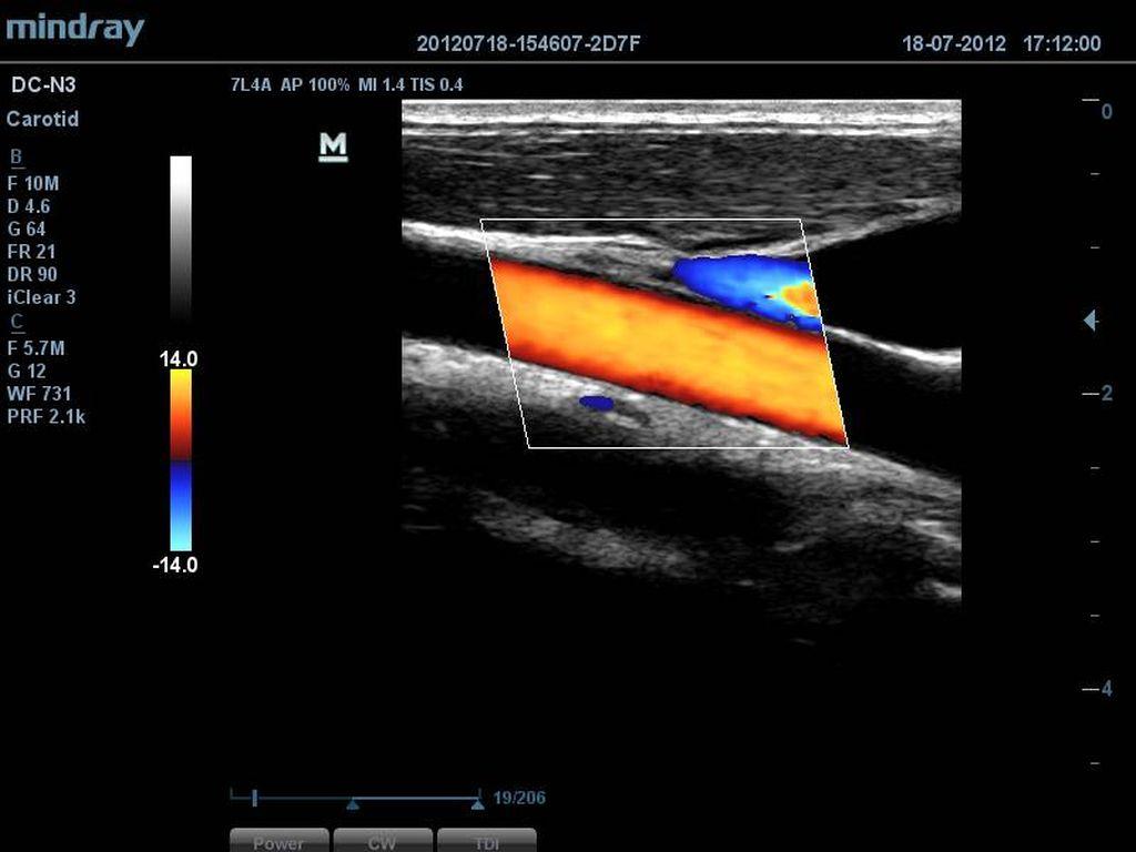 Carotid Artery and Jugular Vein
