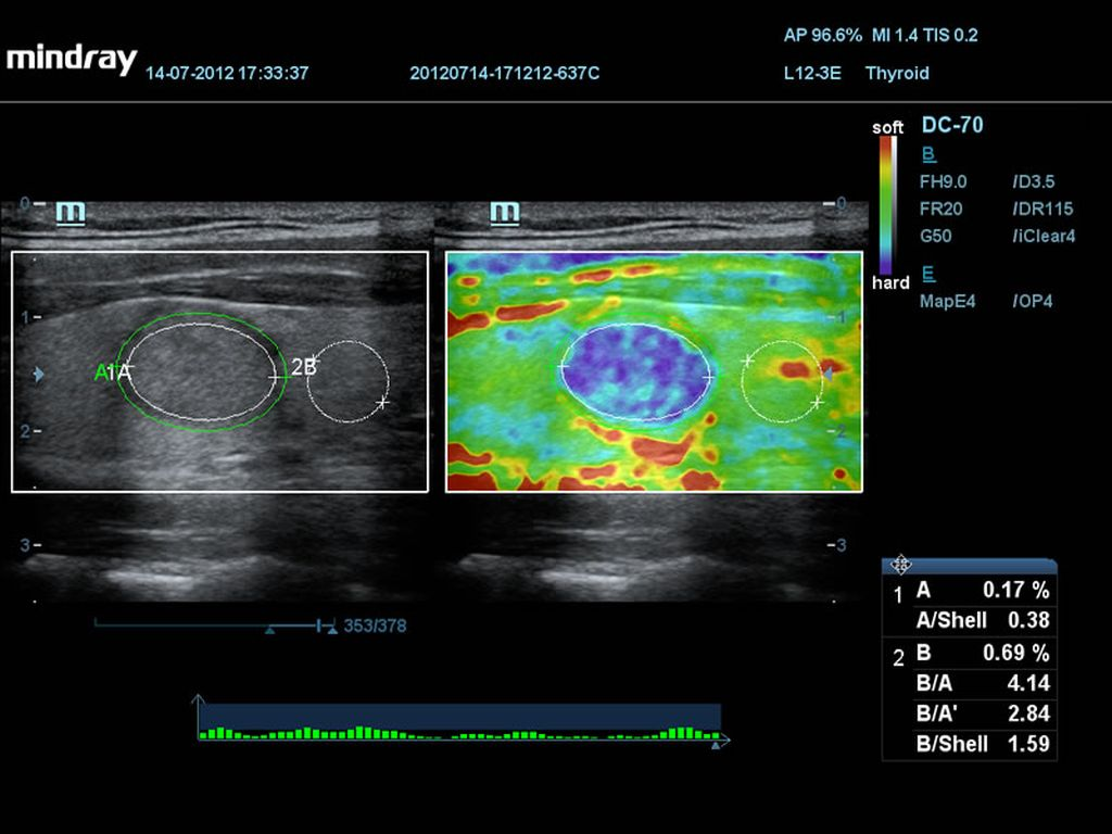 Thyroid Nodule Elastography with Unique Shell Analysis
