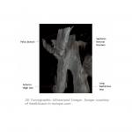 tomografia1_2